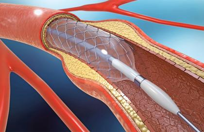 Diagram of a stent installation
